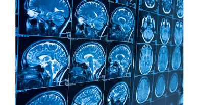 Worldwide Dementia Cases To Triple By 2050
